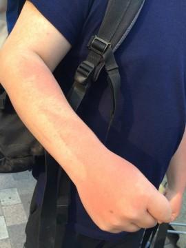 日焼け止めが塗れていない部分は赤くなっています…